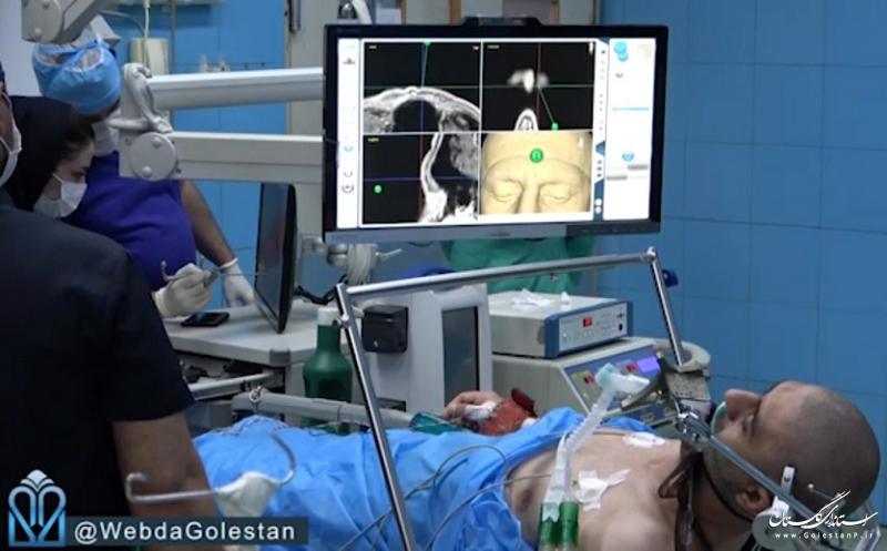 جراحی موفق مغز در حالت بیداری در استان گلستان
